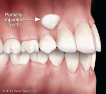 Exposure-of-impacted-canines-for-orthodontics