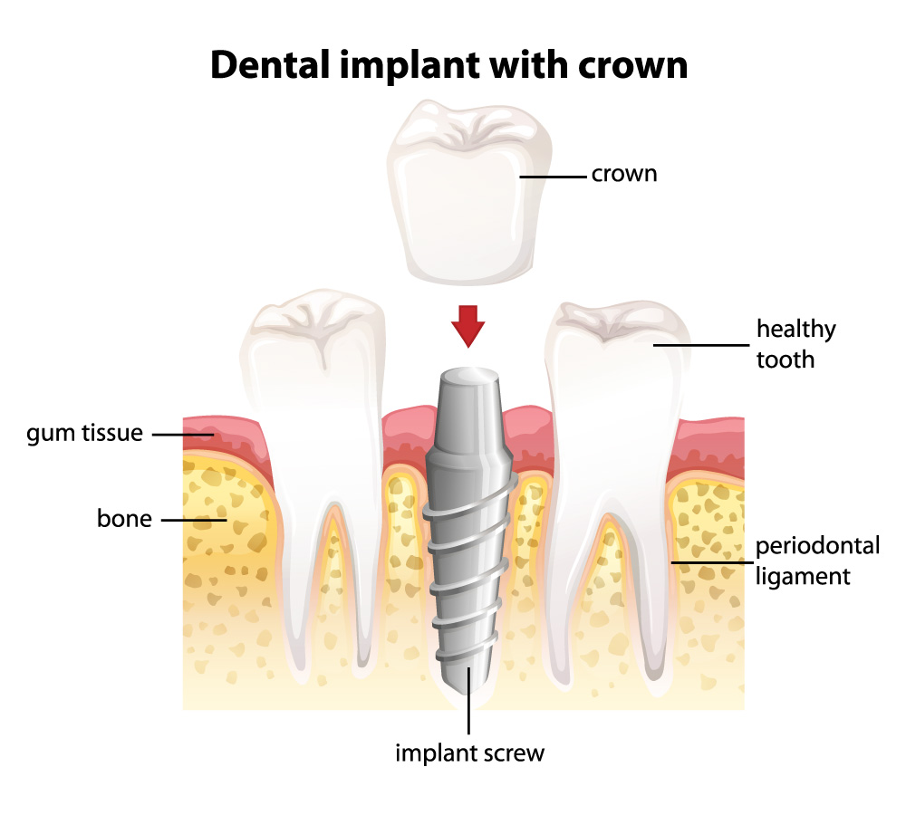 dental-implant-with-crown